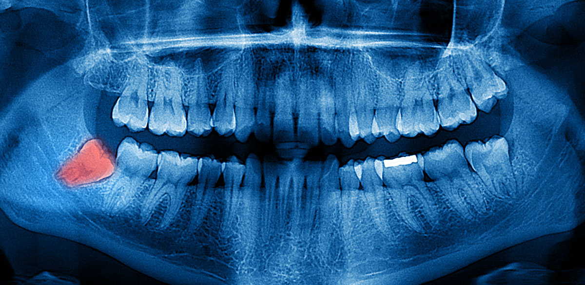 Röntgenbild eines Gebisses mit Weisheitszahn, der entfernt werden sollte
