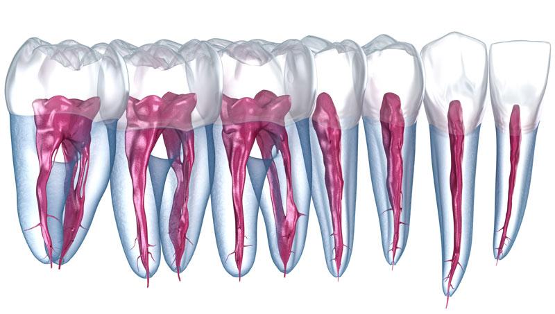 Rendering mit Visualisierung der Nerven im Zahn